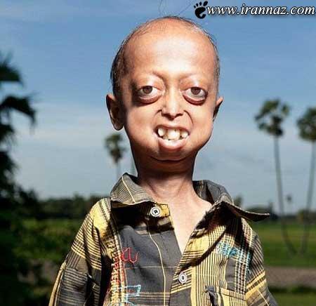 بیماری بسیار عجیب این پیرمرد چهارده ساله!! (عکس)
