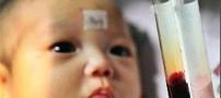 تولد نوزادی عجیب با رنگ خونی متفاوی و جالب (عکس)