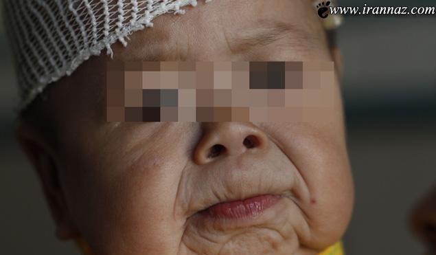 دختر یک ساله ای که شبیه پیرزن ۸۰ ساله (عکس)