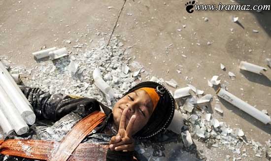 پسری که مرگ را روی انگشتانش می چرخاند (عکس)