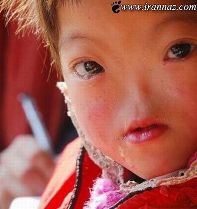 عکس های بسیار عجیب از کودکی که فاقد بینی است