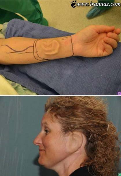 زنی که گوشش روی دستانش است