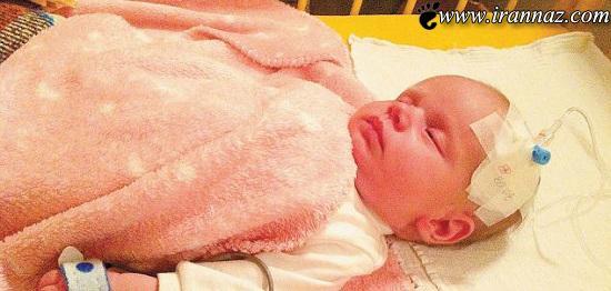 تولد نوزادی بسیار عجیب با بدن حبابی (عکس)