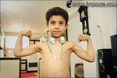 عکس های باورنکردنی از پسری با بد آهن ربایی