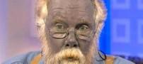 مردی که به طور طبیعی پوستش آبی است (عکس)