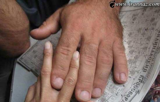 مردی که با دستان بزرگش به شهرت رسید (عکس)