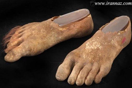 ارباب حلقه ها و پاهای واقعی بریده شده اش (عکس)