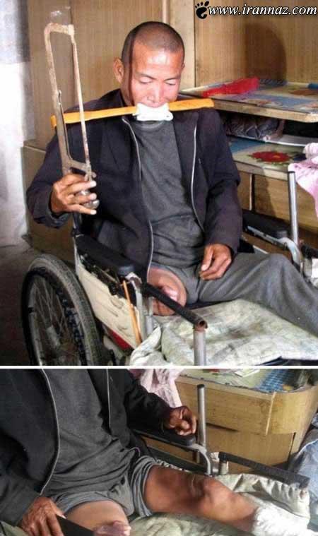 افرادی ترسناک که خودشان را جراحی کردند (عکس)