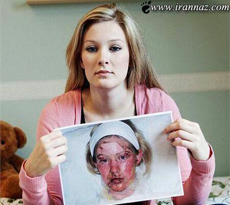 بیماری این دختر همه را شوکه کرد (عکس)