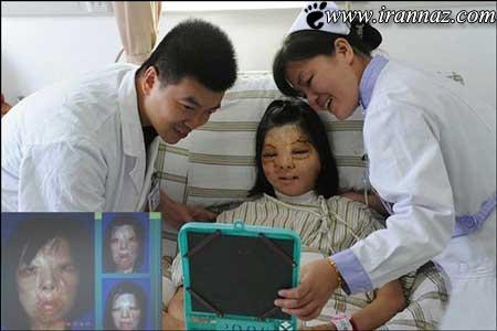 شیوه ی باورنکردنی پیوند پوست صورت در چین (عکس)