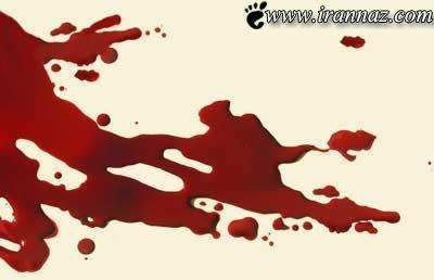 مرگ مشکوک دختر ایرانی در هتل دبی (عکس)