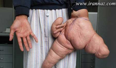 دست این مرد 10 کیلو گرم وزن دارد (عکس)