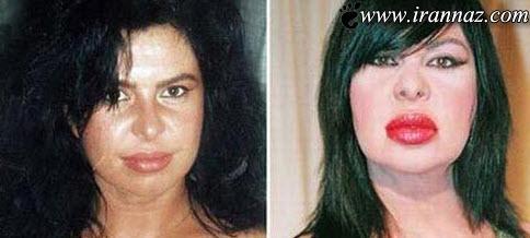 عکس های زنی که بعد از عمل به هیولا تبدیل شد