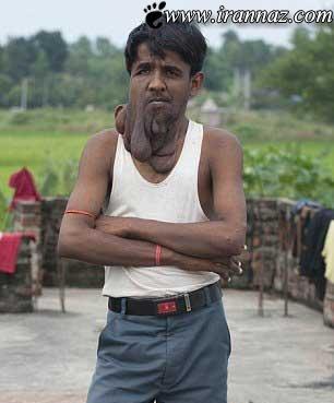 ناراحتی این مرد از بیماری فوق العاده ترسناکش (عکس)