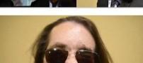 اولین پیوند صورت را با چشمان خود ببینید (عکس)