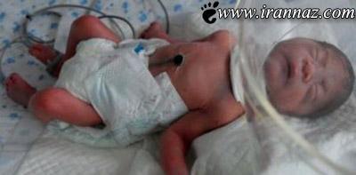 این مادر جنین 3 ماهه خود را خورد (عکس)