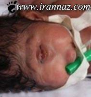 تولد نوزاد عجیب و ترسناک یهودی (عکس)