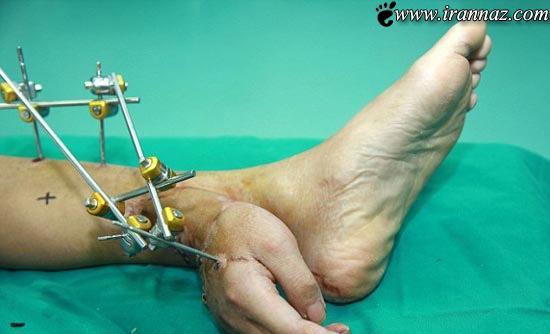 این مرد دست خود را به پایش پیوند زد (عکس)