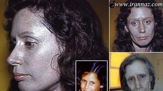 چرا این زن پوستش نقره ای رنگ است؟ (عکس)