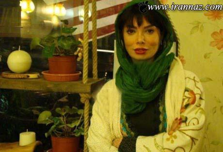 چهره این بازیگر زن معروف ایرانی بعد از عمل جراحی