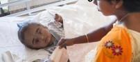 دختری با یک بیماری بسیار عجیب و غریب (عکس)