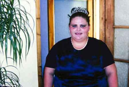 کاهش وزن باور نکردنی این خانم 140 کیلویی (عکس)