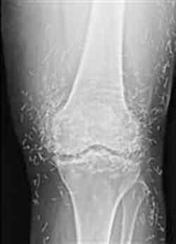 وجود سوزن هایی از جنس طلا در پاهای این زن (عکس)