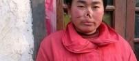 موشی که لب و بینی این دختر بیچاره را جویده (عکس)