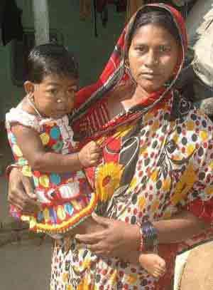 دختر 19 ساله که همیشه در آغوش مادر است + تصویر