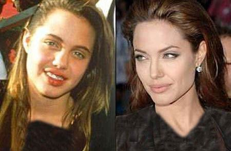آیا آنجلینا جولی جراحی زیبایی انجام داده؟(عکس)