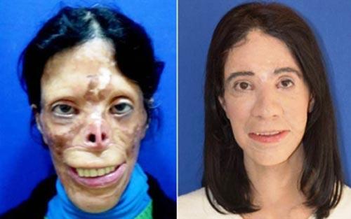 معجزه وحشتناک جراحی زیبایی این خانم!! (عکس)