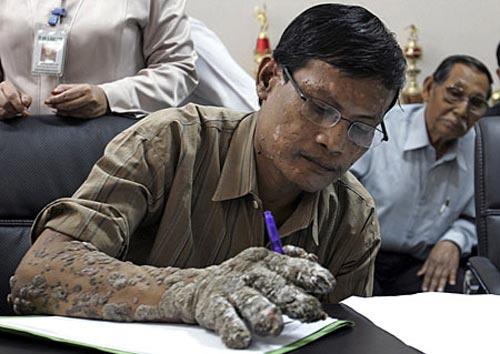 عجیب ترین بیماری پوستی در بدن این آقا! (عکس)