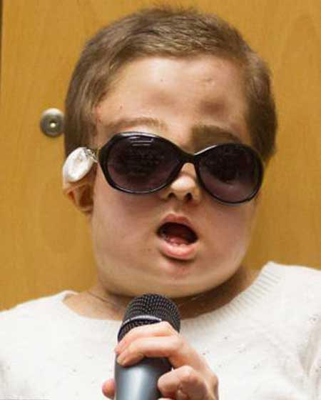 خارج کردن تومور بزرگی از صورت این دختر جوان (عکس)
