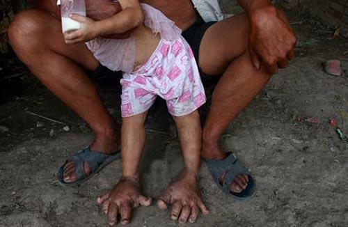 پاهای عجیب این دختر شبیه دست هستند! (عکس)