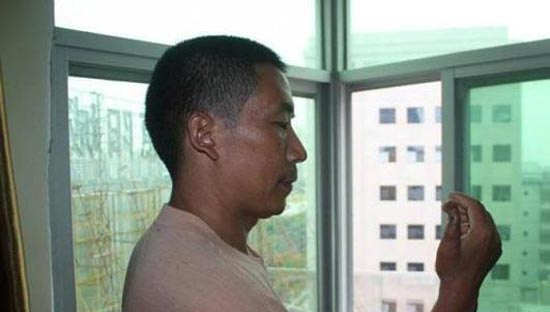 پیوند انگشت پا به دست این مرد چینی! (عکس)