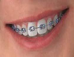 چرا ردیف دندان ها برهم می خورند؟
