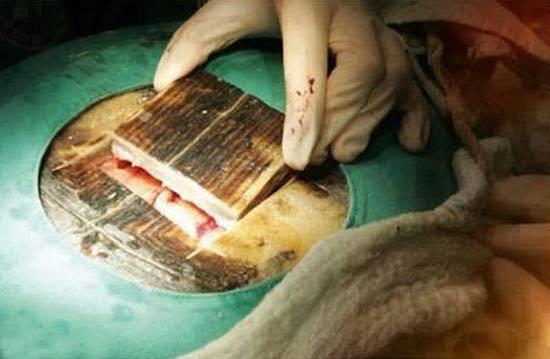 عمل جراحی سزارین روی لاک پشت! (عکس)
