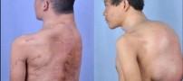 خروج تومور 13 کیلویی از گردن این بیمار!! (عکس)