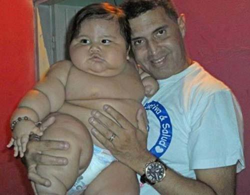 این کودک 20 کیلو وزن دارد! (عکس)