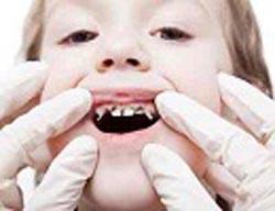 این کودکان به پوسیدگی دندان مبتلا می شوند