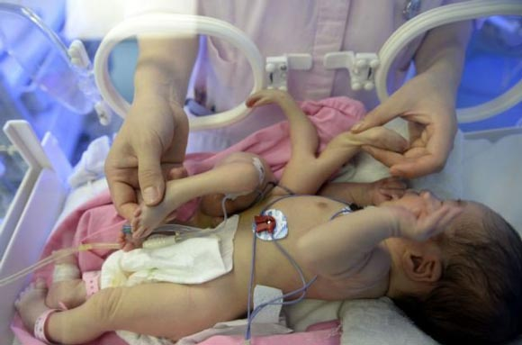 جراحی نوزاد 8 دست و پا (عکس)