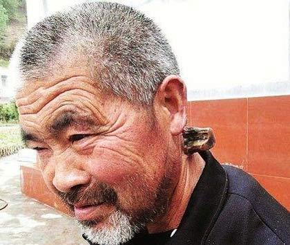 این مرد چینی روی گردنش شاخ دارد! (عکس)