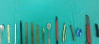 خارج کردن اشیائی عجیب از معده یک کودک (عکس)