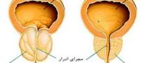 با علایم سرطان پروستات آشنا شوید