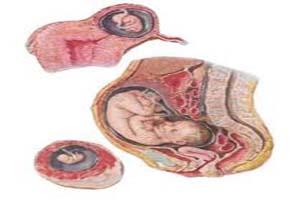 بارداری خارج رحمی و علائم آن