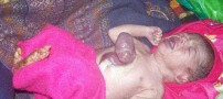 قلب این نوزاد بیرون از بدنش است! (عکس)