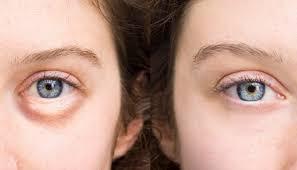 آیا می دانید دلیل پف زیر چشم چیست؟