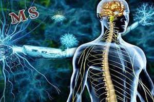 درمان بیماری MS با استفاده از هورمون بارداری