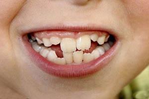 علت اینکه دندان ها کج رشد می کنند چیست؟