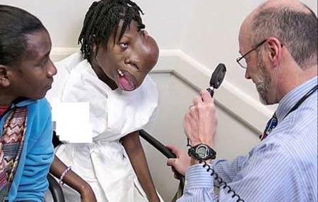 تومور 1800 گرمی چهره این دختر را ترسناک کرد